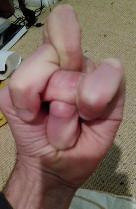 Fingergymnastik.PNG